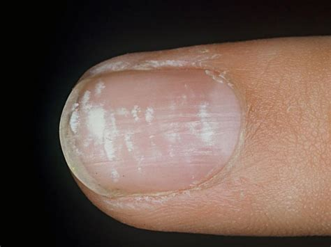 Skin and Nail Conditions - Podiatry 103 with Cowley at